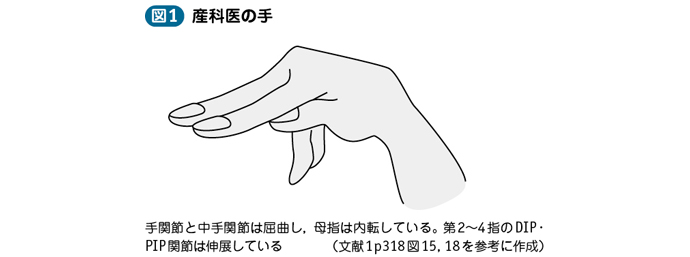 03_43_過換気症候群