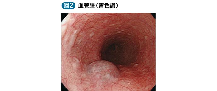 05_06_食道良性腫瘍