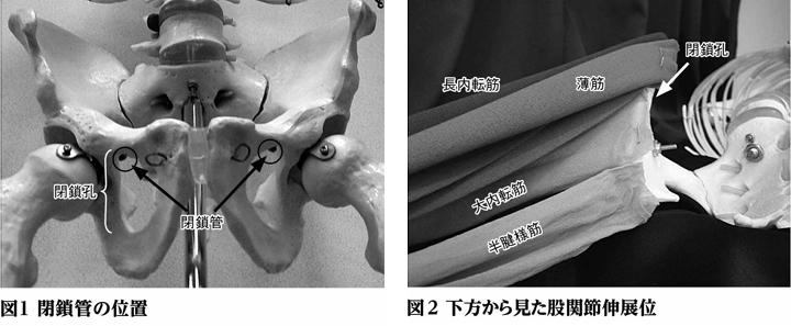 閉鎖孔ヘルニアの解剖学的部位と用手的整復方法関連記事・論文