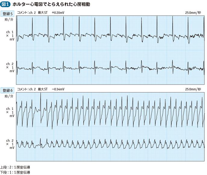 心房 細 動 症状
