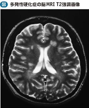 多発性硬化症(MS)|電子コンテ...