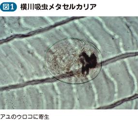 横川吸虫症(有害異形吸虫症を含...