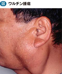 耳下腺腫瘍|電子コンテンツ|日...
