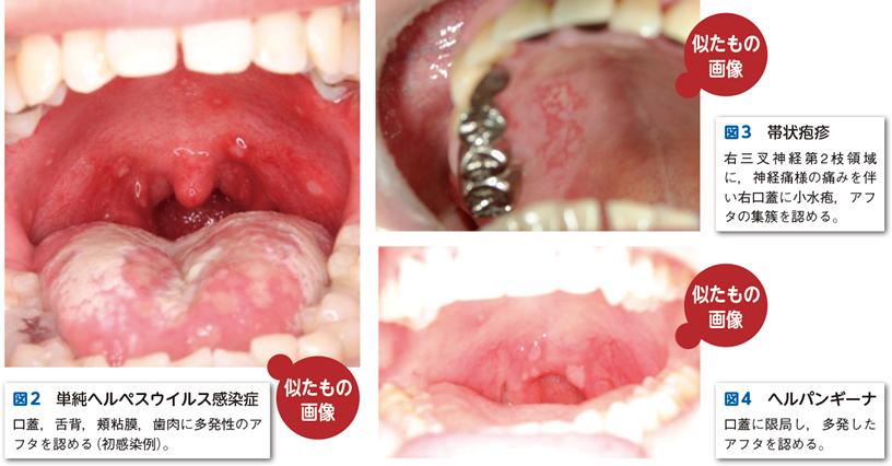 第15章 5. 性感染症と口腔粘膜症状|電子コンテンツ|日本医事 ...
