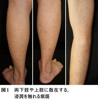 (12)Ⅳ 消化器病の皮膚病変─1 IgA血管炎[特集:皮膚病変でみる内科疾患]関連記事・論文