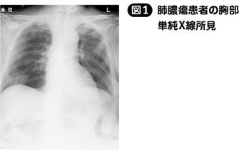 肺膿瘍[私の治療]|Web医事新報|日本医事新報社