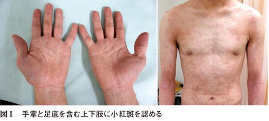 3カ月前から二峰性の発熱・皮疹で受診した30歳男性[キーフレーズで読み解く 外来診断学(228)]関連記事・論文